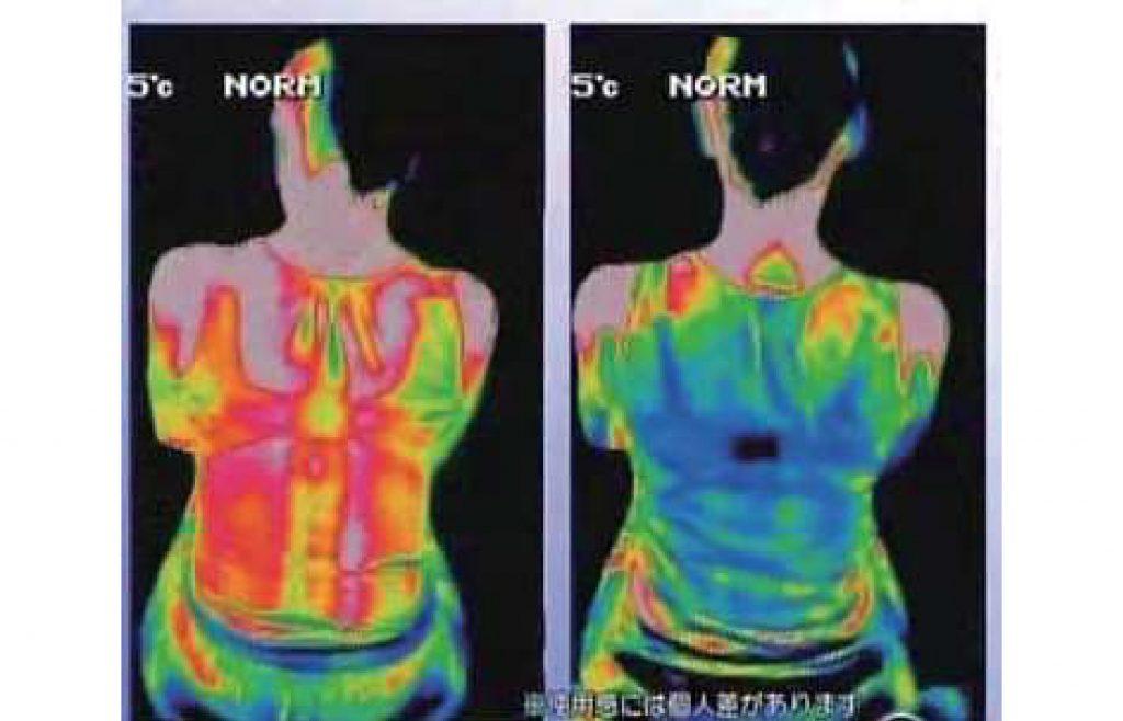 เปรียบเทียบอุณหภูมิร่างกายก่อนและหลังใช้ Mild Aqua gel