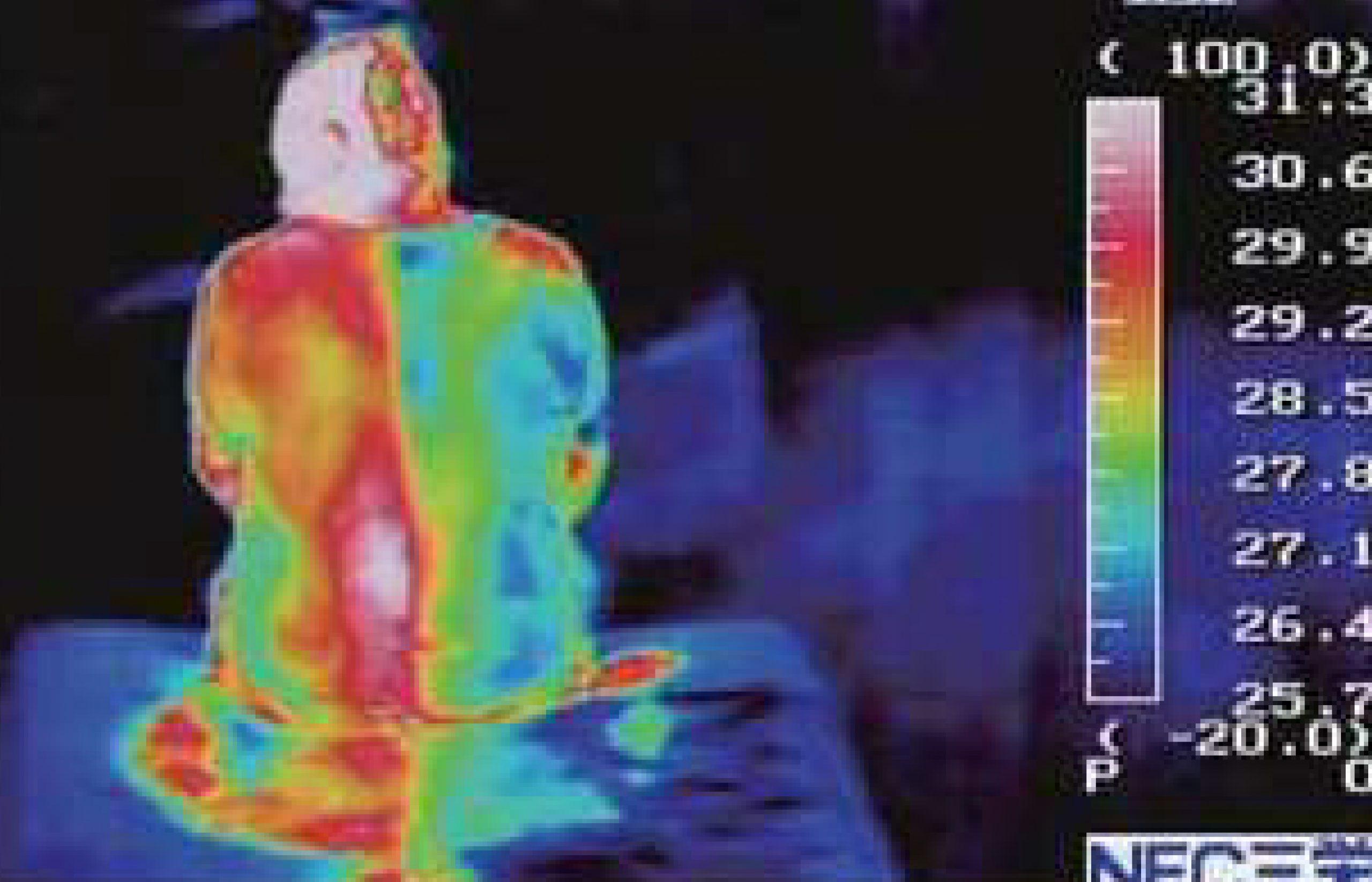เปรียบเทียบอุณหภูมิร่างกายข้างนึงใช้ Mild Aqua gel ข้างนึงไม่ใช้